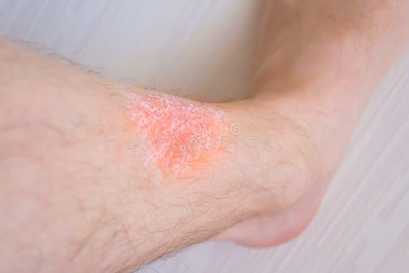 Huidirritatie van voeten, toegepaste room op de huid van irritatie royalty-vrije stock afbeeldingen