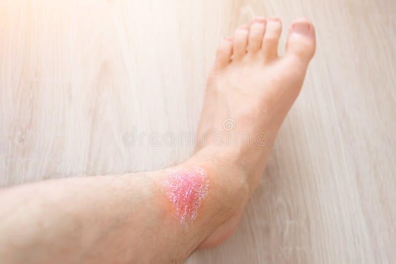 Huidirritatie van voeten, toegepaste room op de huid van irritatie stock afbeelding