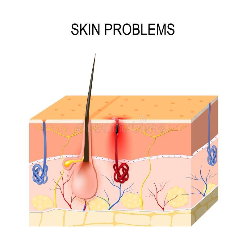 huidproblemen Belemmerde poriën royalty-vrije illustratie