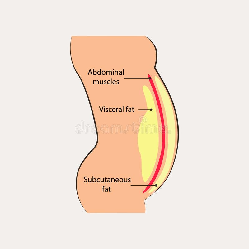 Human abdominal muscles. Ocation of visceral fat stored within abdominal cavity. Medical diagram. Vector illustration stock illustration