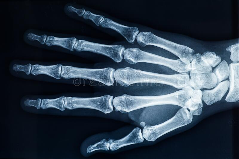 Human adult right hand bones x-ray image. Medical and anatomy radiography or imagery. Human adult female right hand bones x-ray image. Medical and anatomy stock photo