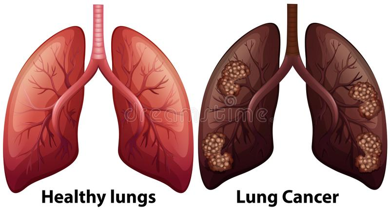 Human Anatomy of Lung Condition. Illustration vector illustration