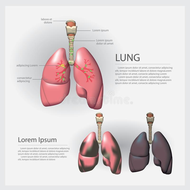 Human Anatomy Lung with Detail and Lung Cancer royalty free illustration