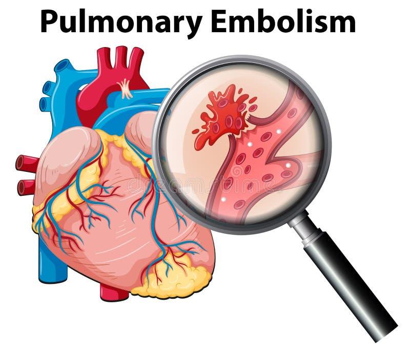 Human anutomy pulmonary embolism royalty free illustration