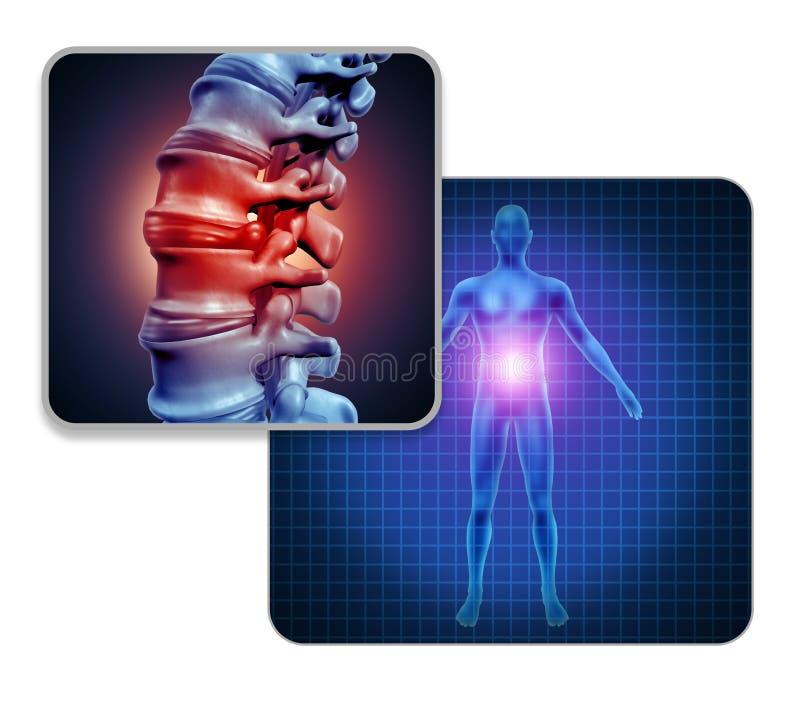 Human Back Joint Pain vector illustration
