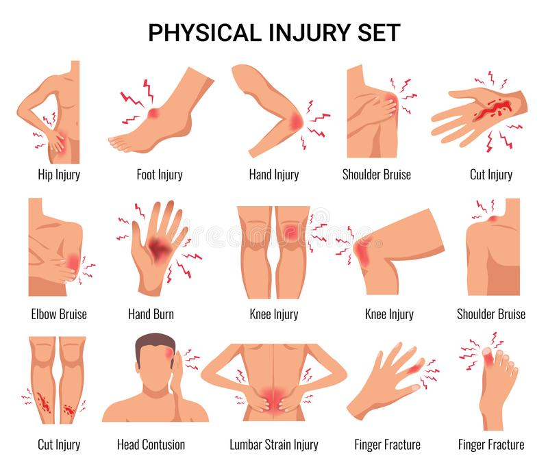 Injury Flat Set. Human body parts physical injury flat set with head contusion elbow bruise open cut wounds vector illustration stock illustration