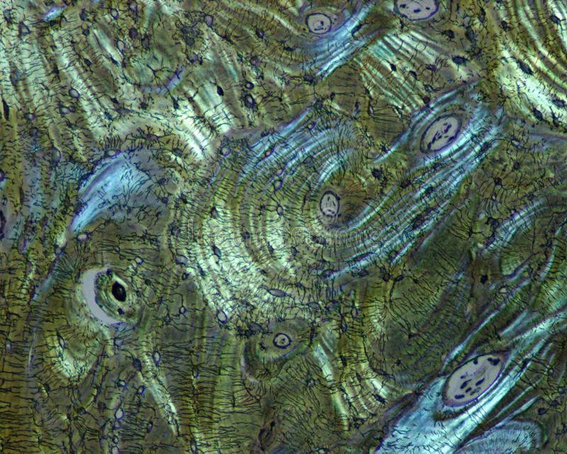 Human bone. Microscopic image of human bone stained after Bodian in polarized light stock images