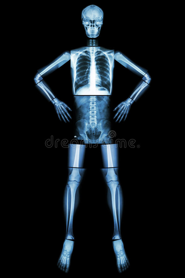 Human bone stand and akimbo (X-ray whole body : head skull neck spine shoulder arm elbow forearm wrist hand finger chest thorax he. Art lung abdomen back royalty free stock image