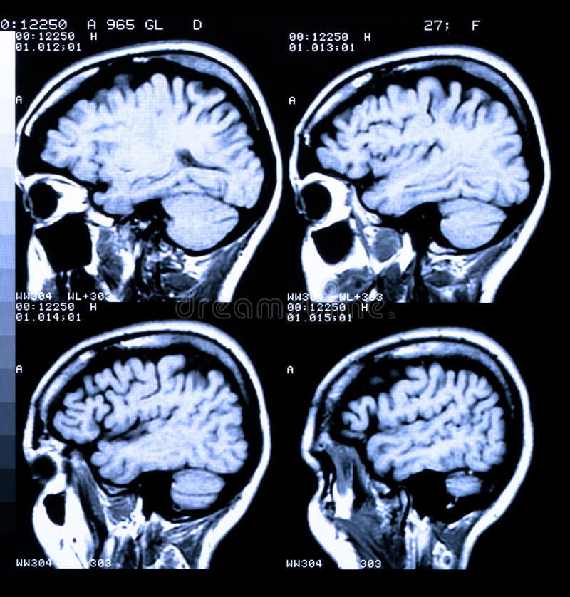Human Brain. Health medical image of an MRI / MRA (Magnetic Resonance Angiogram) of the head showing the brain stock images