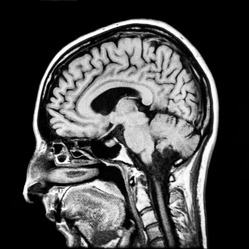 Human brain MRI scan. Vertical section of human brain MRI scan royalty free stock photos