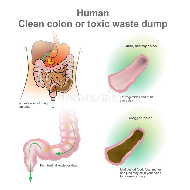 Human Clean colon or toxic waste dump. Vector, Illustration. stock illustration