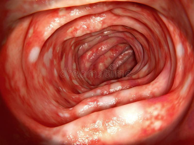 Human colon affected by ulcerative colitis vector illustration