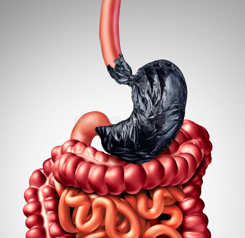Human Digestion Problem. As a stomach shaped as a garbage bag with the intestine organ as a symbol for indigestion pain in the digestive system as a medical royalty free illustration