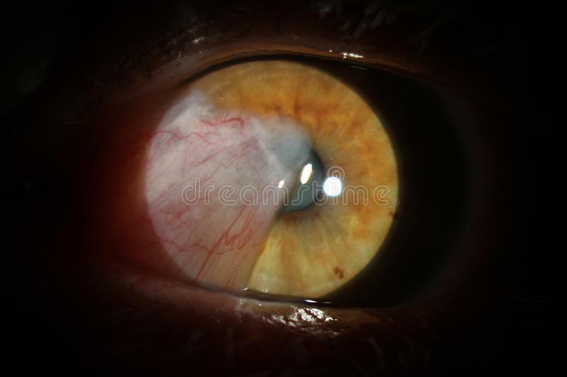 Human eye with cataract. Investigation and test of the eye fund us of the human eye. The pathology of the eye is cataract. stock photography