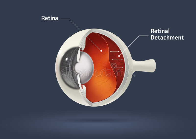Human eye - retinal detachment. High quality raster illustration of retinal detachment with clipping path stock illustration