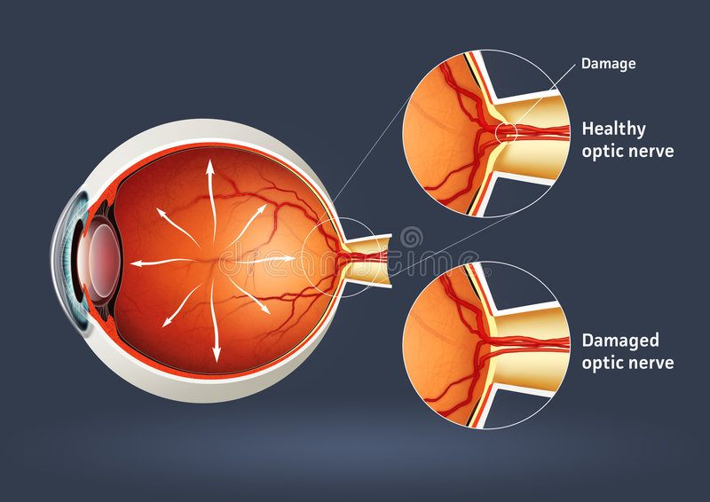 Human eye - retinal detachment royalty free stock image