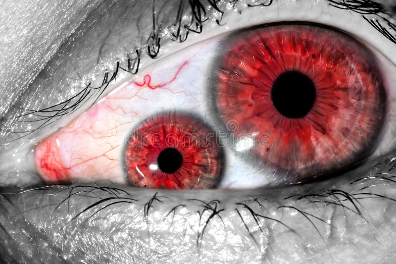 Human eye with two pupils and red tight veins on protein macro close-up texture background. Two unnatural human eyes in one royalty free stock image