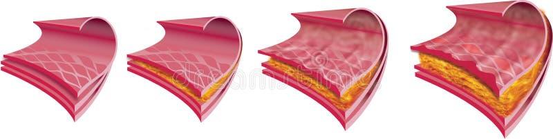 human för 2 artär vektor illustrationer
