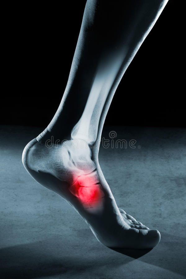 Human foot ankle and leg in x-ray royalty free stock image
