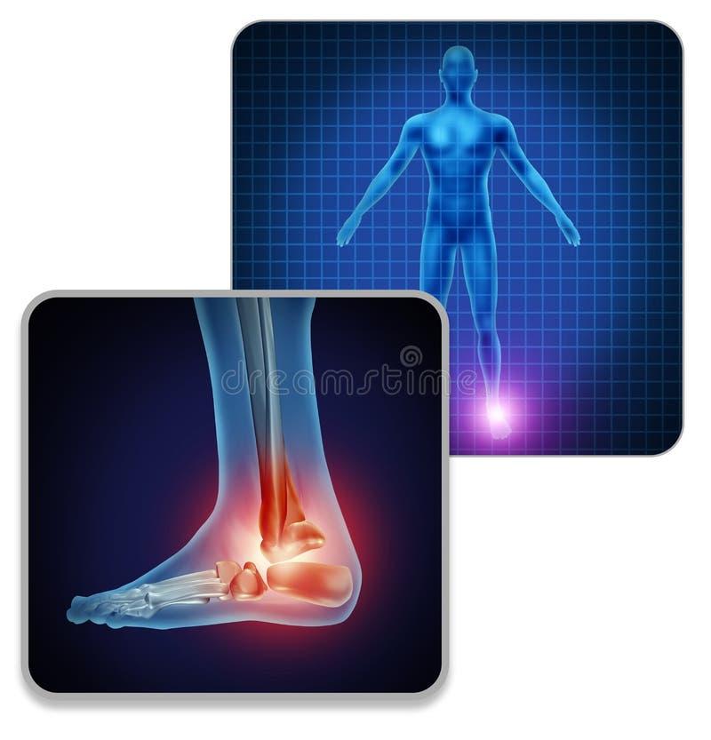 Human Foot Joint Pain royalty free illustration