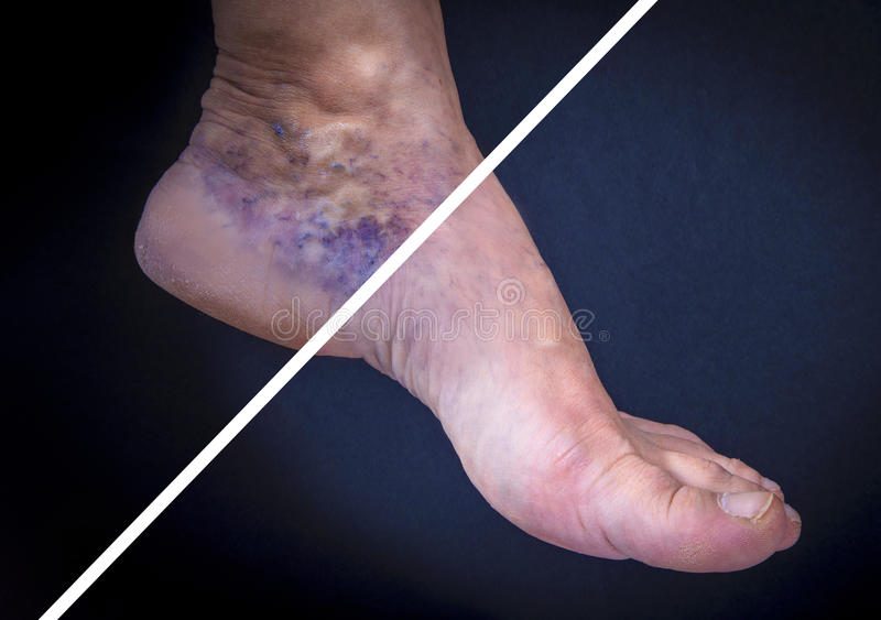 Human foot with varicose veins before and after. Adult woman foot with varicose veins before and after treatment on dark background royalty free stock images