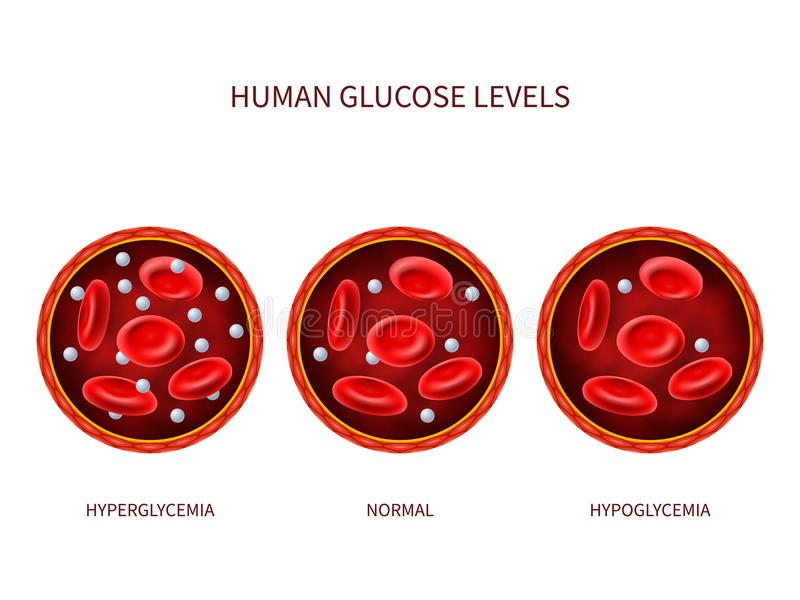 Human glucose levels hyperglycemia, normal, hypoglycemia. Hematology vector diagram with blood vessel, erythrocytes and royalty free illustration