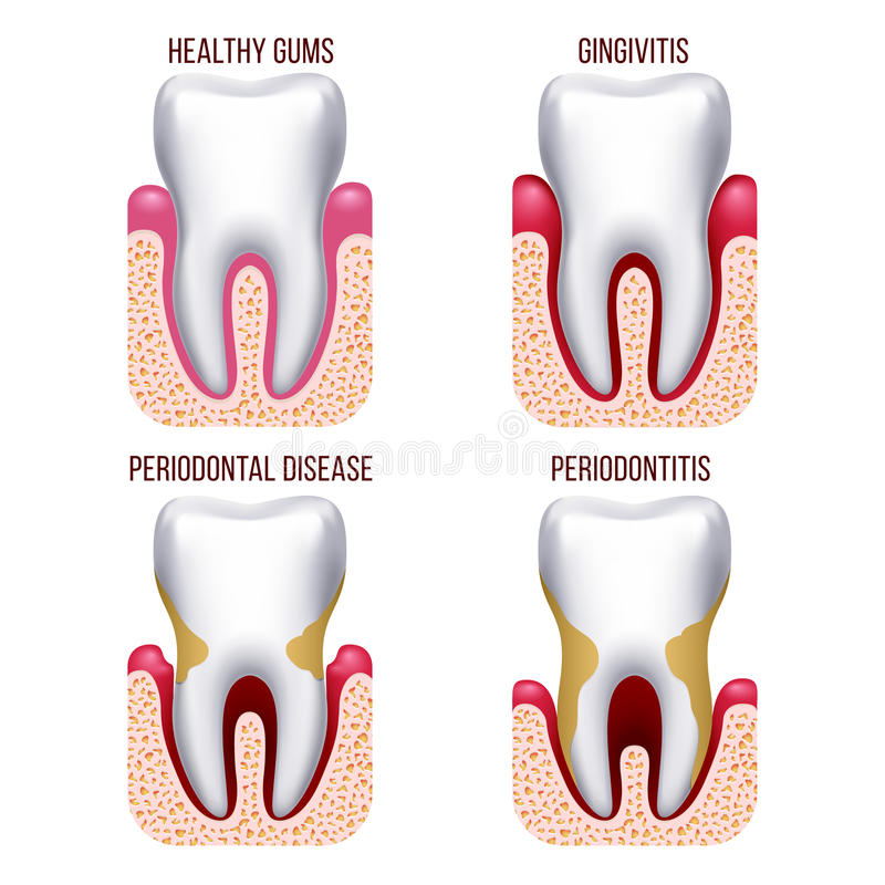 Human gum disease, gums bleeding. Tooth prevention dental, oral care vector infographics vector illustration