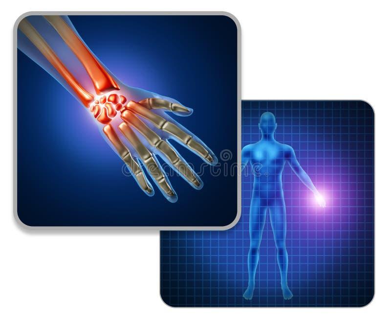 Human Hand Joint Pain vector illustration