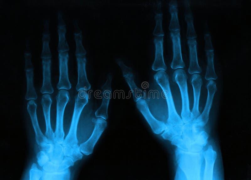 Download Human hands stock image. Image of radiologist, hospital - 22049895