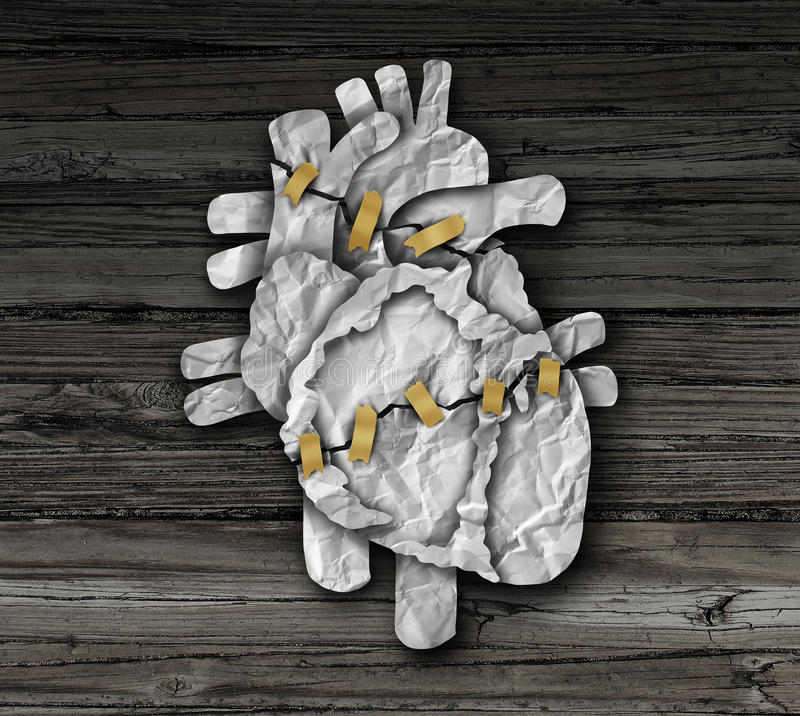 Human Heart Surgery royalty free illustration