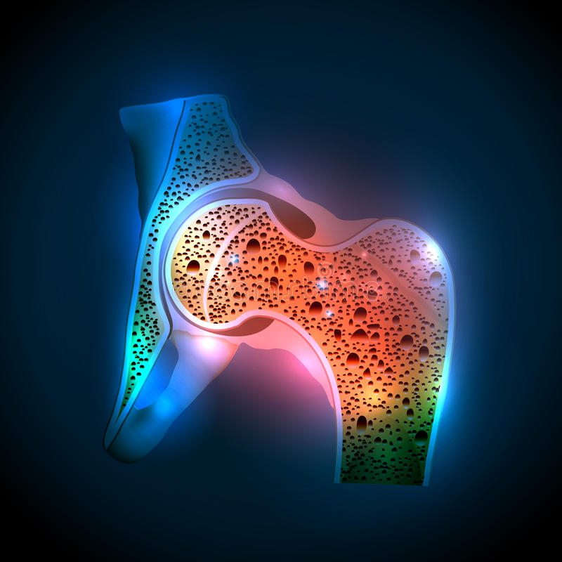 Human hip joint and Osteoporosis stock illustration