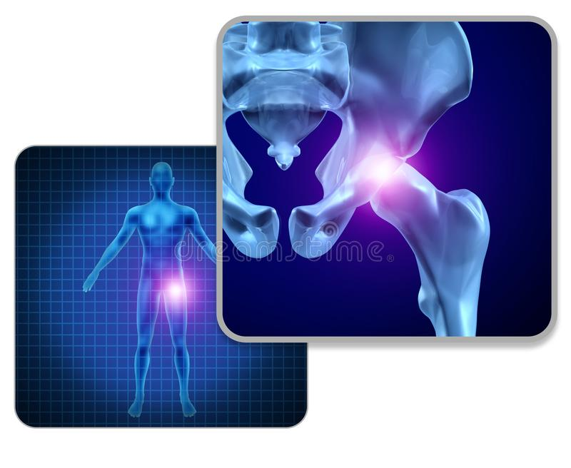 Human Hip Joint Pain. Concept as skeleton and muscle anatomy of the body with sore joints as a painful injury or arthritis illness symbol for health care and royalty free illustration