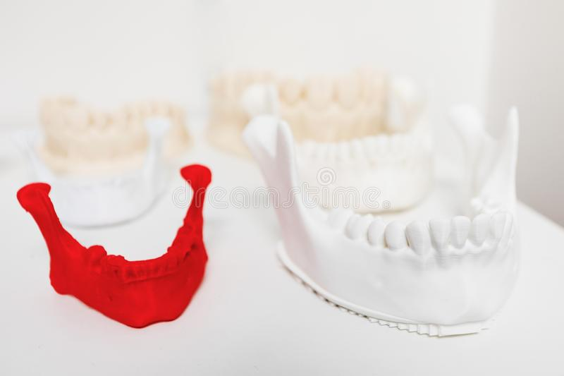 Human jaw plastic models. Real and reduced size royalty free stock photography