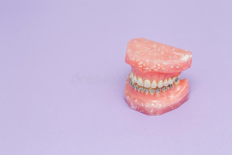 Human jaw or teeth model with metal wired dental braces stock photography