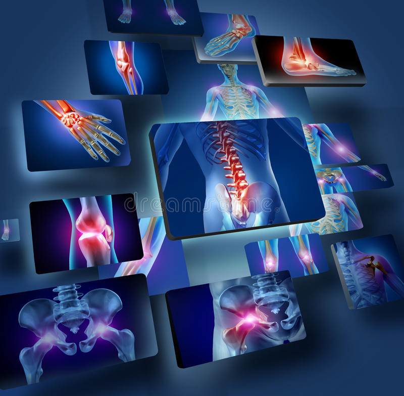 Human Joints Concept. With the skeleton anatomy of the body with a group of panels of sore joints glowing as a pain and injury or arthritis illness symbol for