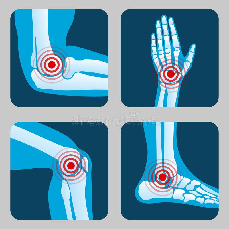 Human joints with pain rings. Arthritis and rheumatism infographic. Medical app vector buttons vector illustration