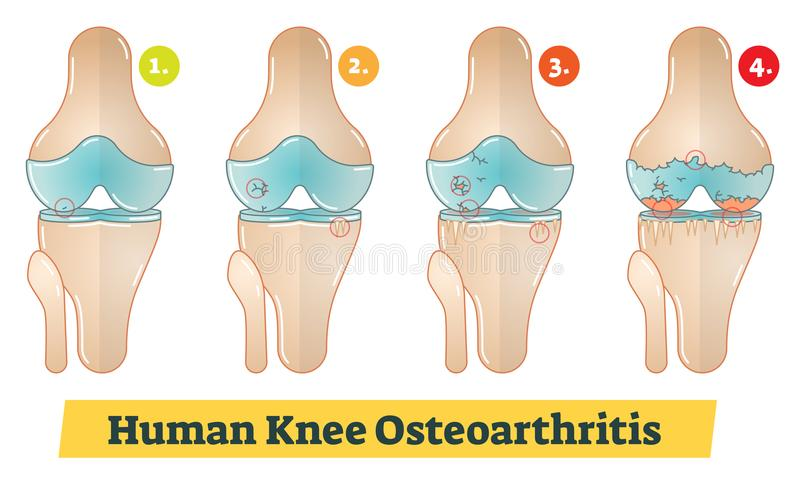 Human Knee Osteoarthritis diagram illustration. Human Knee Osteoarthritis vector diagram illustration royalty free illustration