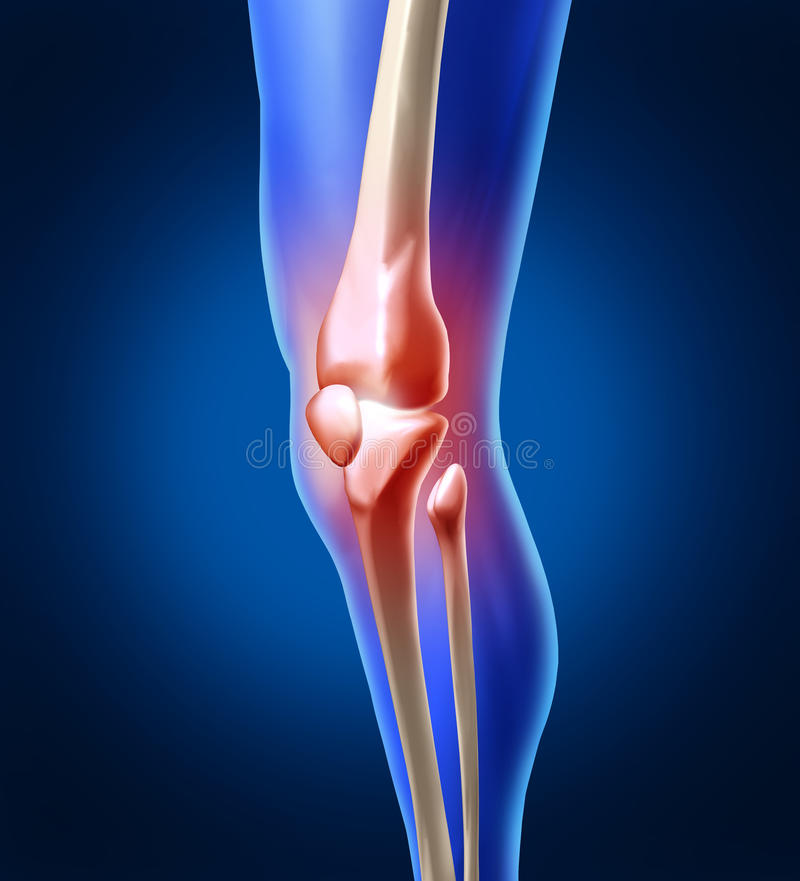 Human Knee Pain. With the anatomy of a skeleton leg and showing the inside inflammation of the painful joint that needs orthopedic surgery and physical therapy royalty free illustration