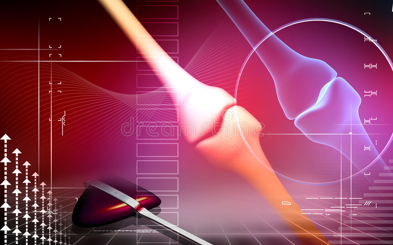 Human leg bone joint. Digital illustration of a human leg bone joint With surgical hammer stock illustration