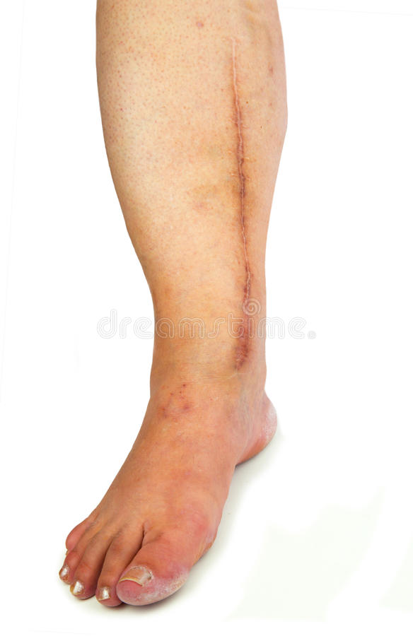 Human leg with postoperative scar of cardiac surgery royalty free stock images