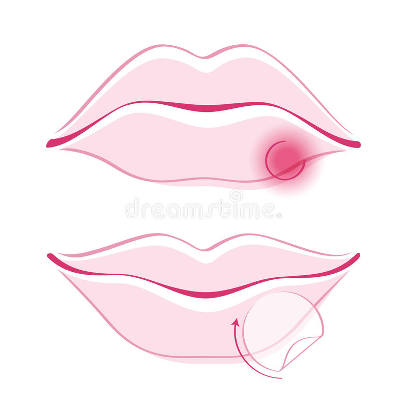 Human lips simple style vector illustration. Beautiful girl's lips with cold sore bandage simple style outline vector illustration. Woman face part icon. Good