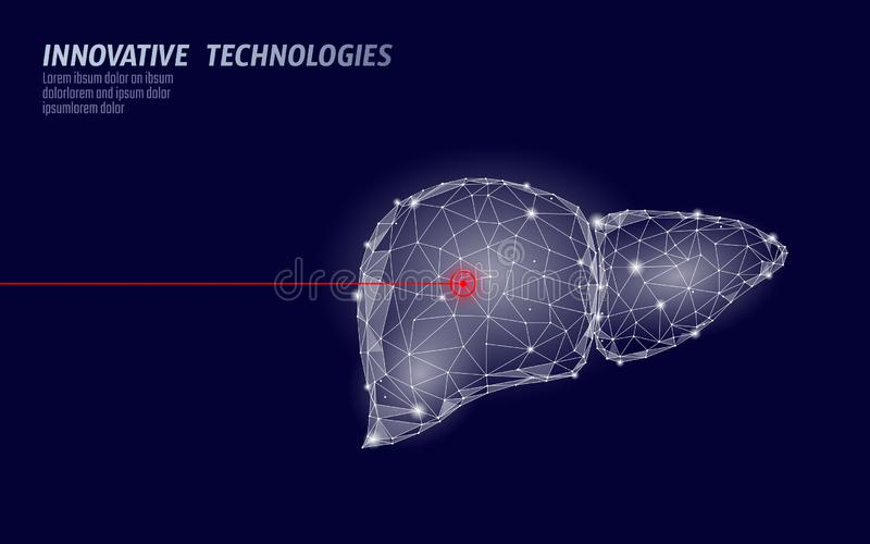 Human liver laser surgery operation low poly. Medicine disease drug treatment painful area. Red triangles polygonal 3D. Render shape. Pharmacy hepatitis cancer stock illustration