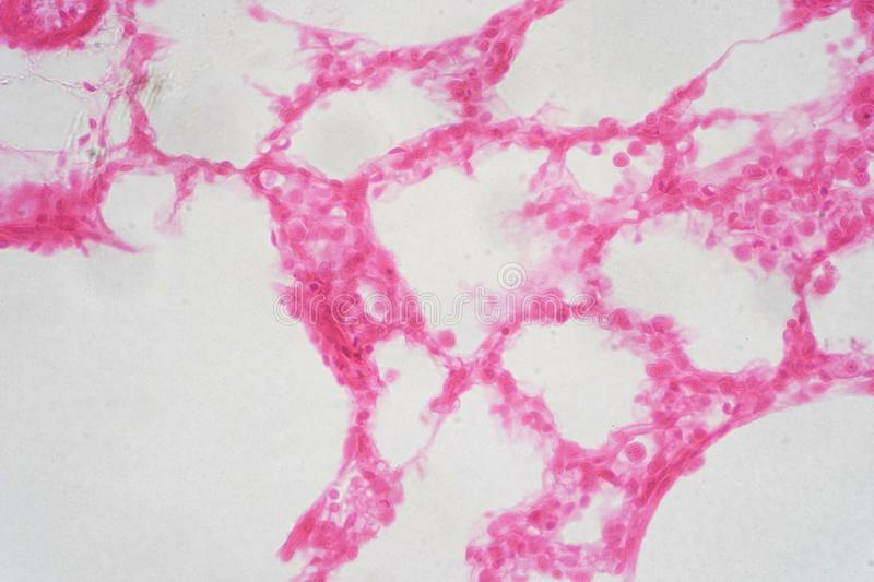 Human lung tissue under microscope view. stock image