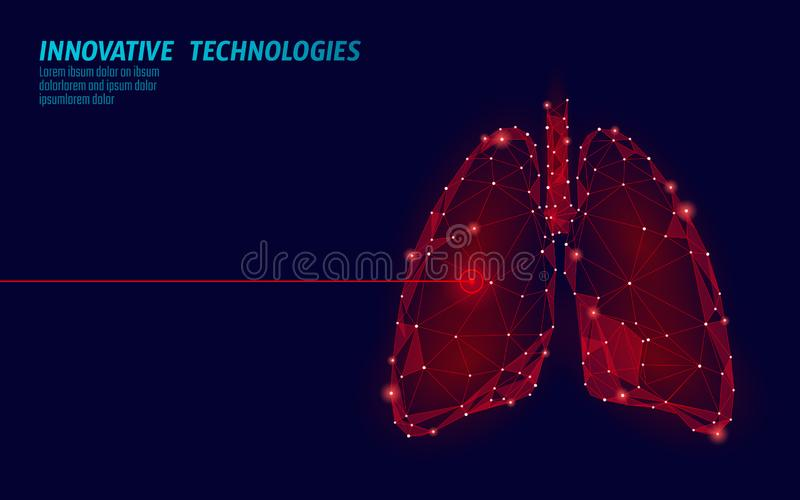 Human lungs laser surgery operation low poly. Medicine disease drug treatment painful area. Red triangles polygonal 3D. Render shape. Pharmacy tuberculosis vector illustration