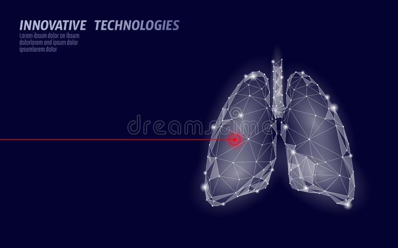 Human lungs laser surgery operation low poly. Medicine disease drug treatment painful area. Red triangles polygonal 3D. Render shape. Pharmacy tuberculosis stock illustration