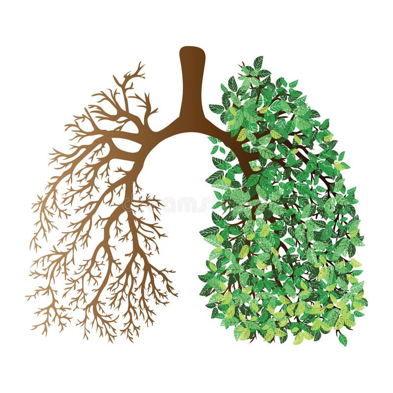 Free Human Lungs. Respiratory System. Healthy Lungs. Light In The Form Of A Tree. Line Art. Drawing By Hand. Medicine. Royalty Free Stock Images - 104930059