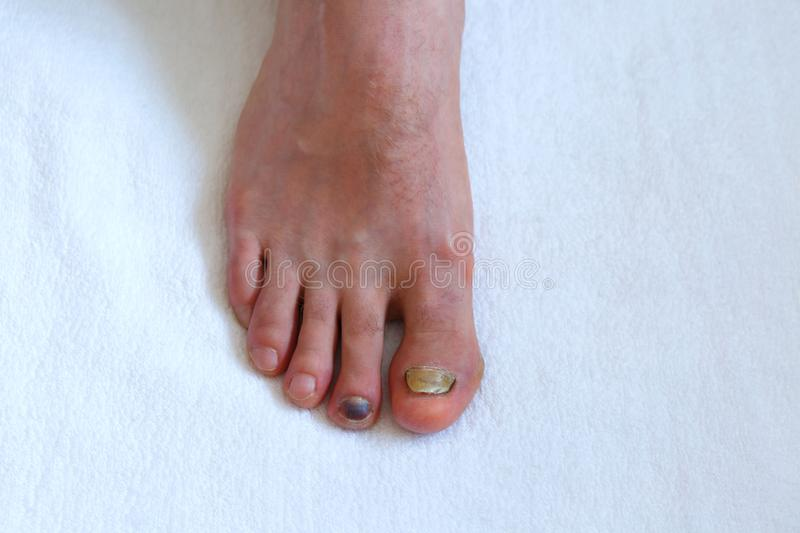 Human male foot with bruised black on toe nails on white background . Human male foot with bruised black on toe nails on white background. medicine concept royalty free stock photo