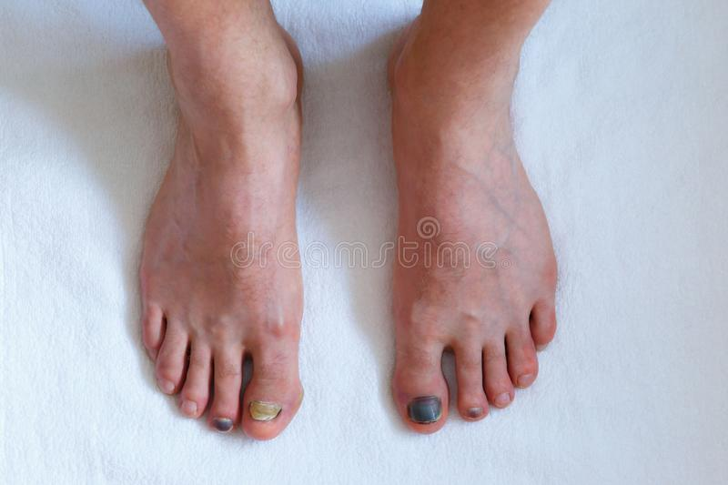Human male foots with bruised black on toe nails on white background . Human male foots with bruised black on toe nails on white background. medicine concept stock images