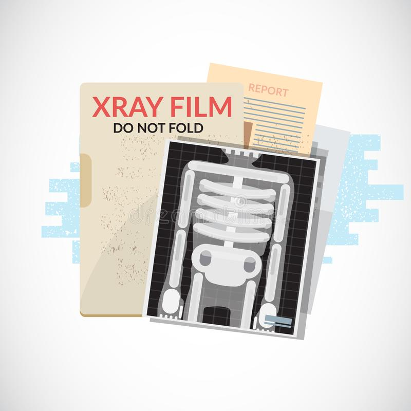 Human X-Ray film with paper and folder. Medical objects, file an. D document - illustration vector illustration