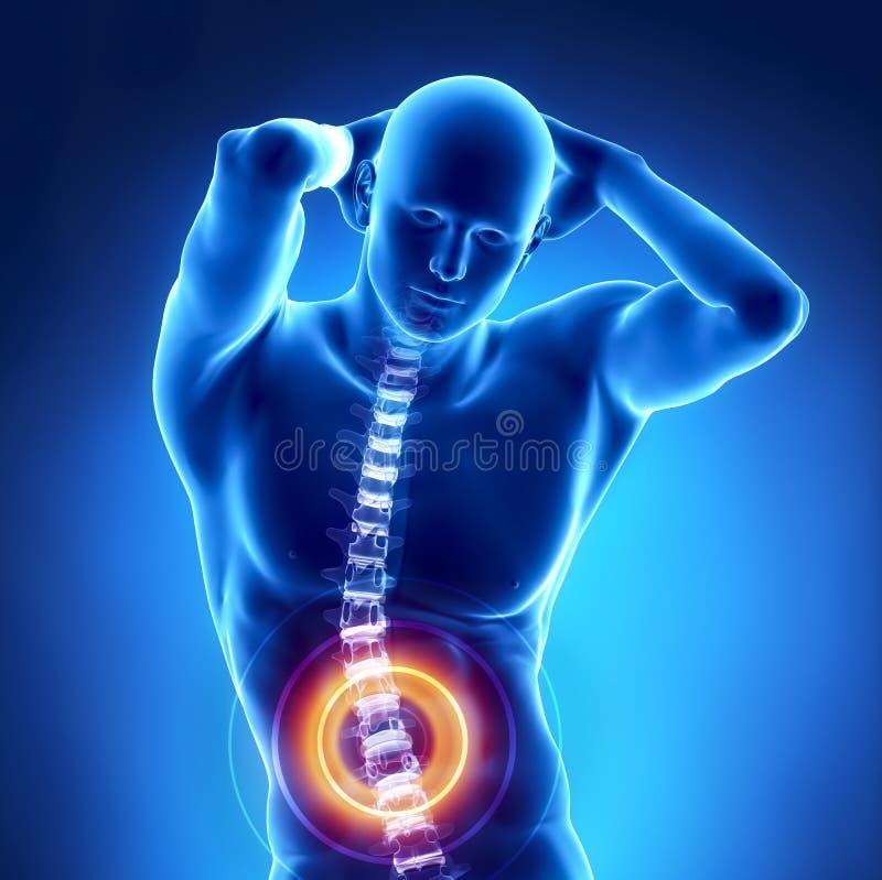 Human x-ray lumbar spine problem vector illustration